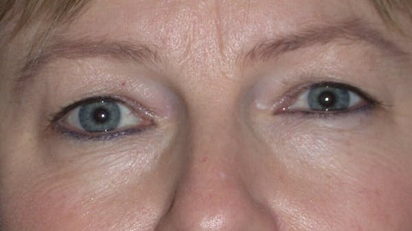 Eyelid Lift Gallery - Patient 4756946 - Image 1