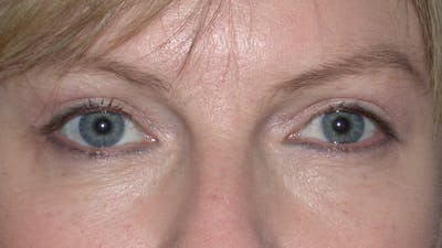 Eyelid Lift Gallery - Patient 4756946 - Image 2