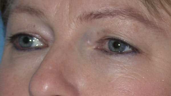 Eyelid Lift Gallery - Patient 4756946 - Image 3