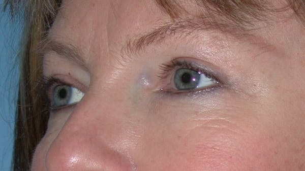 Eyelid Lift Gallery - Patient 4756946 - Image 4