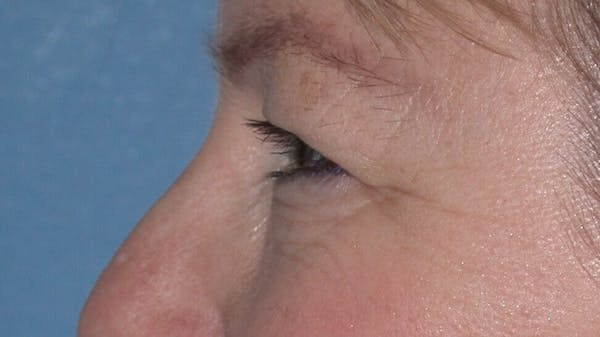 Eyelid Lift Gallery - Patient 4756946 - Image 5