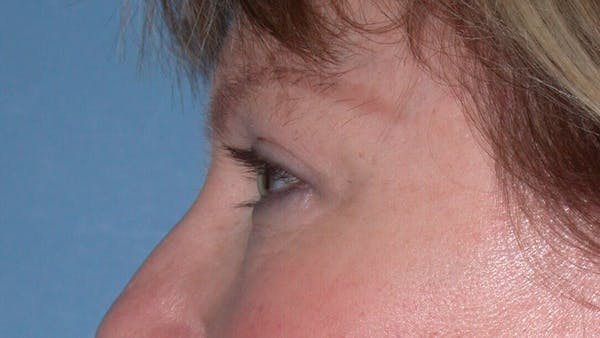 Eyelid Lift Gallery - Patient 4756946 - Image 6