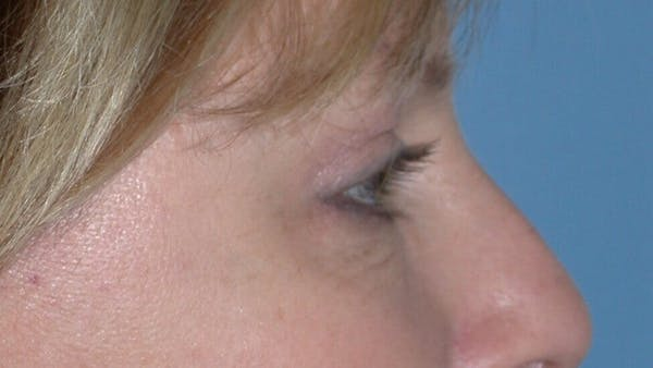 Eyelid Lift Gallery - Patient 4756946 - Image 8