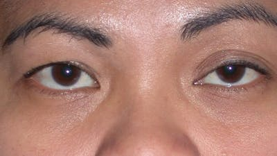 Eyelid Lift Gallery - Patient 4756947 - Image 1
