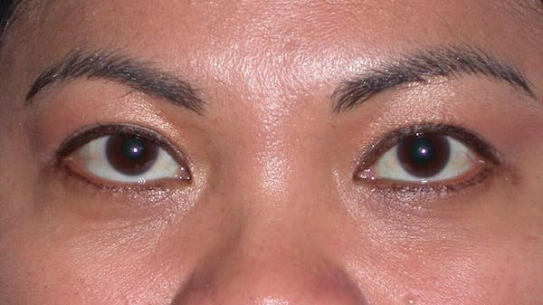 Eyelid Lift Gallery - Patient 4756947 - Image 2