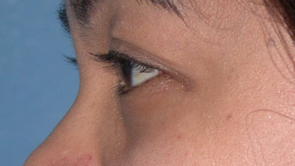 Eyelid Lift Gallery - Patient 4756947 - Image 3