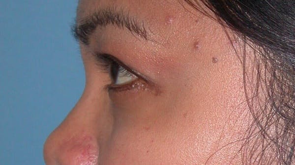 Eyelid Lift Gallery - Patient 4756947 - Image 4