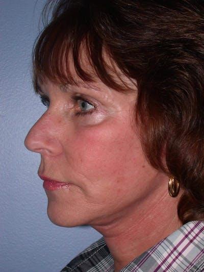 Facelift Gallery - Patient 4756948 - Image 4