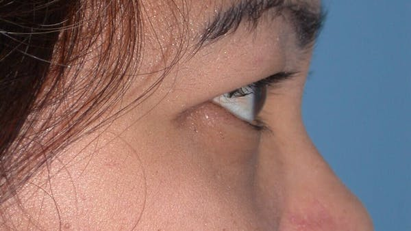 Eyelid Lift Gallery - Patient 4756947 - Image 5