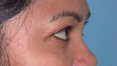 Eyelid Lift Gallery - Patient 4756947 - Image 6