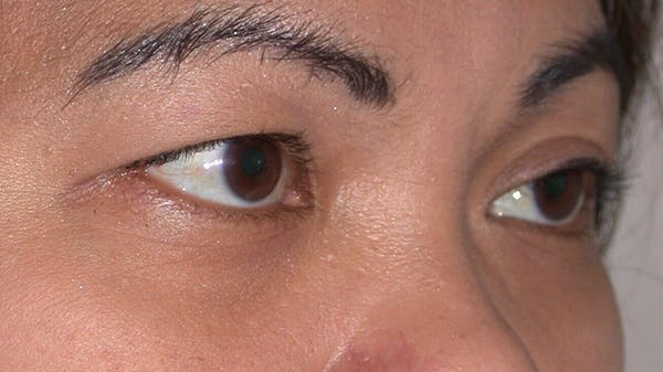 Eyelid Lift Gallery - Patient 4756947 - Image 7