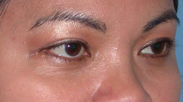 Eyelid Lift Gallery - Patient 4756947 - Image 8