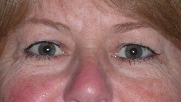 Eyelid Lift Gallery - Patient 4756951 - Image 1