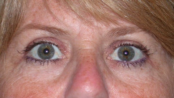 Eyelid Lift Gallery - Patient 4756951 - Image 2