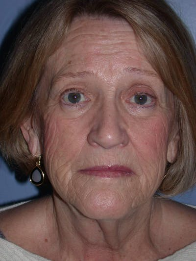 Facelift Gallery - Patient 4756954 - Image 1
