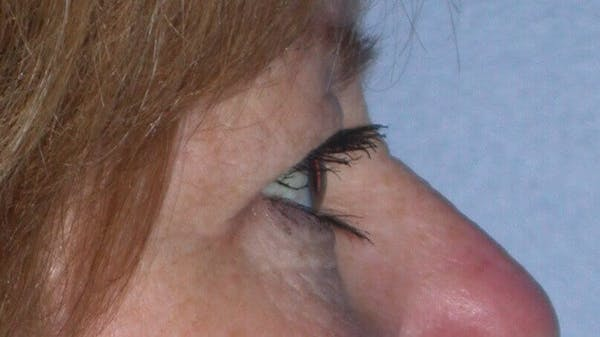 Eyelid Lift Gallery - Patient 4756951 - Image 3