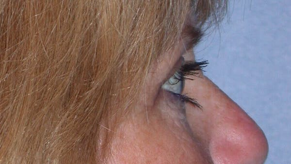 Eyelid Lift Gallery - Patient 4756951 - Image 4