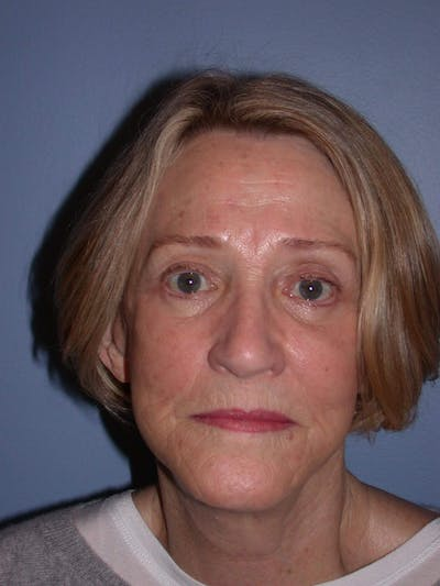 Facelift Gallery - Patient 4756954 - Image 2