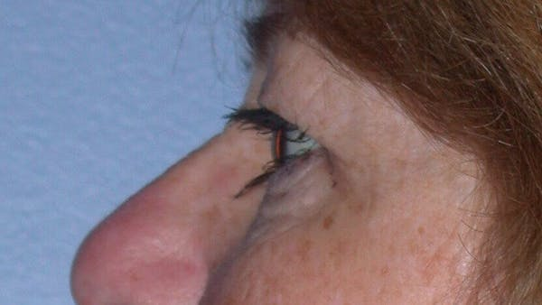 Eyelid Lift Gallery - Patient 4756951 - Image 5