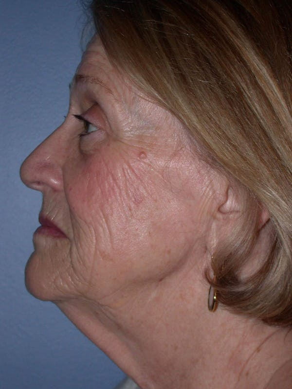 Facelift Gallery - Patient 4756954 - Image 3