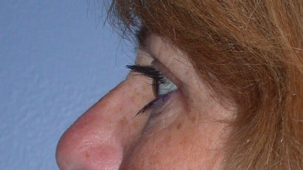 Eyelid Lift Gallery - Patient 4756951 - Image 6