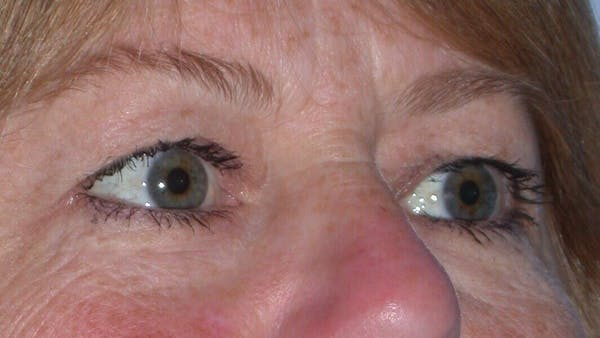 Eyelid Lift Gallery - Patient 4756951 - Image 7