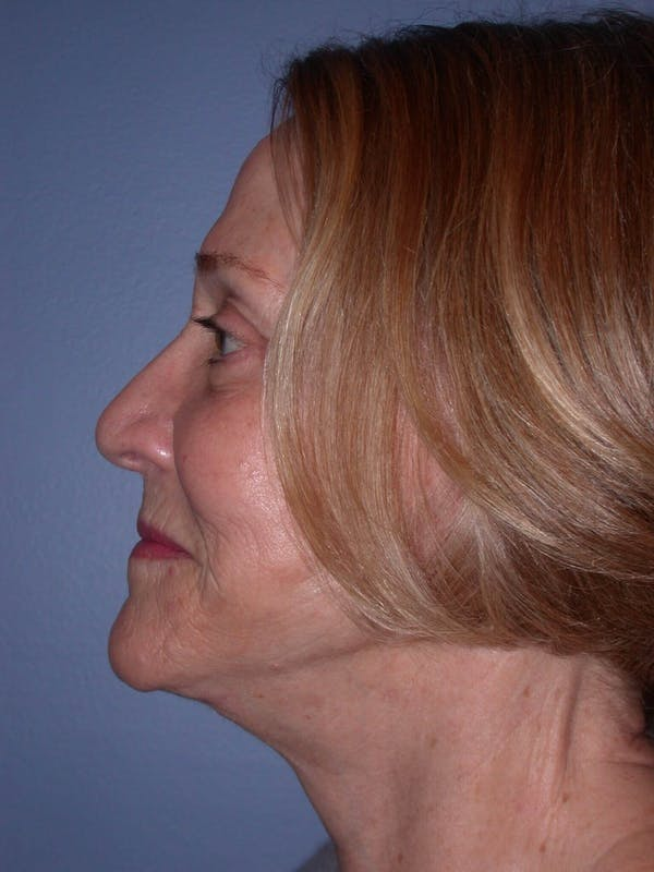 Facelift Gallery - Patient 4756954 - Image 4