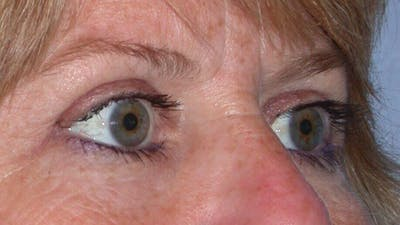 Eyelid Lift Gallery - Patient 4756951 - Image 8