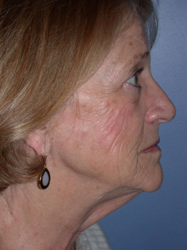 Facelift Gallery - Patient 4756954 - Image 5