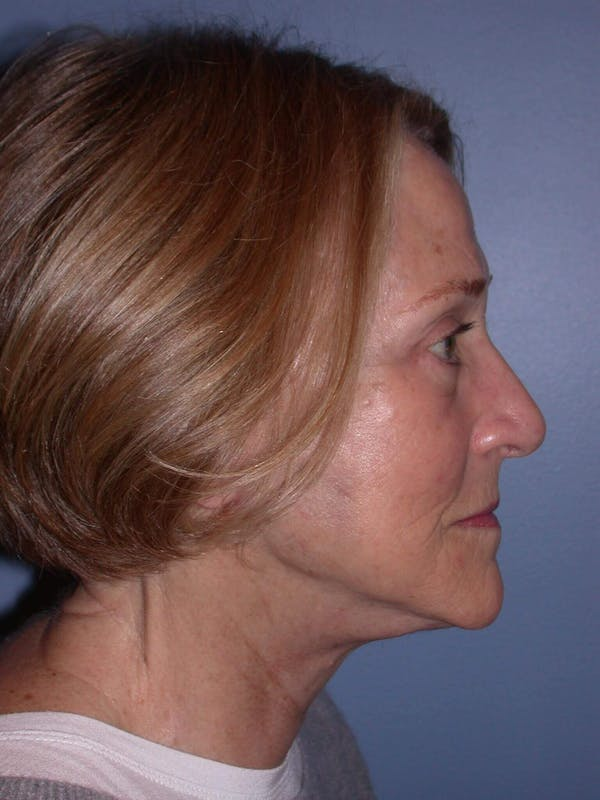 Facelift Gallery - Patient 4756954 - Image 6