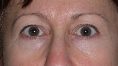 Eyelid Lift Gallery - Patient 4756956 - Image 1