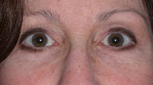 Eyelid Lift Gallery - Patient 4756956 - Image 2