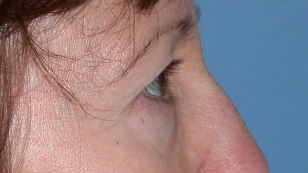 Eyelid Lift Gallery - Patient 4756956 - Image 3