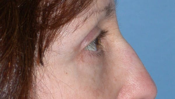 Eyelid Lift Gallery - Patient 4756956 - Image 4