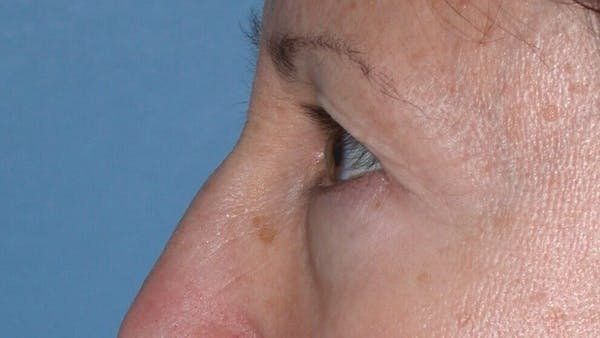 Eyelid Lift Gallery - Patient 4756956 - Image 5