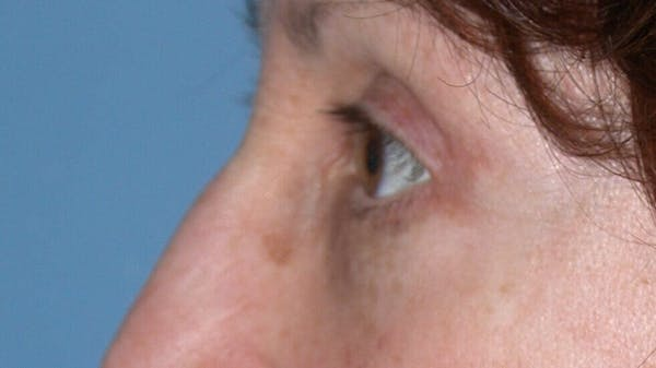 Eyelid Lift Gallery - Patient 4756956 - Image 6