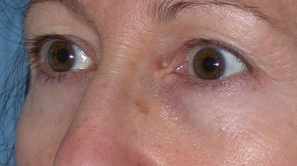 Eyelid Lift Gallery - Patient 4756956 - Image 7
