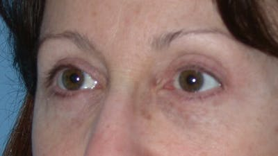 Eyelid Lift Gallery - Patient 4756956 - Image 8
