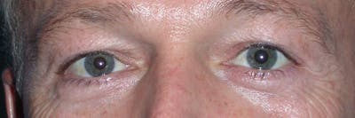 Eyelid Lift Gallery - Patient 4756957 - Image 1