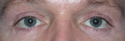 Eyelid Lift Gallery - Patient 4756957 - Image 2