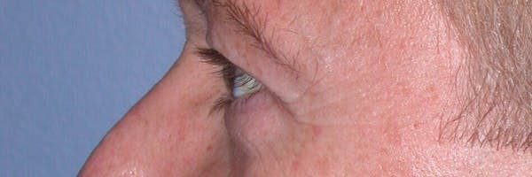 Eyelid Lift Gallery - Patient 4756957 - Image 3
