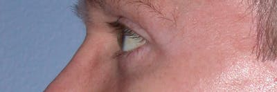 Eyelid Lift Gallery - Patient 4756957 - Image 4