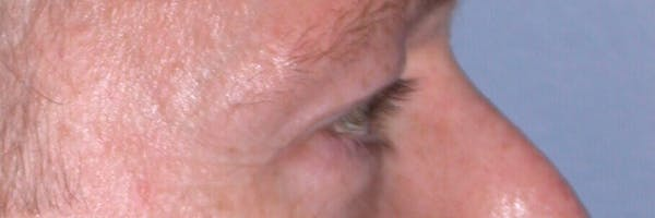 Eyelid Lift Gallery - Patient 4756957 - Image 5
