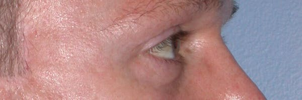 Eyelid Lift Gallery - Patient 4756957 - Image 6
