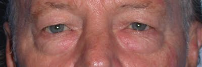 Eyelid Lift Gallery - Patient 4756962 - Image 1