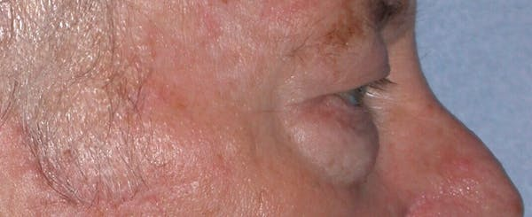 Eyelid Lift Gallery - Patient 4756962 - Image 3