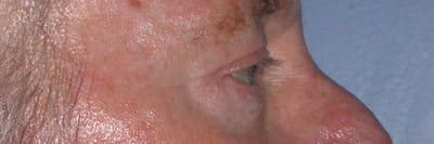 Eyelid Lift Gallery - Patient 4756962 - Image 4