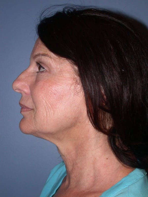 Facelift Gallery - Patient 4756963 - Image 3