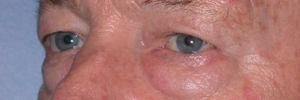 Eyelid Lift Gallery - Patient 4756962 - Image 5