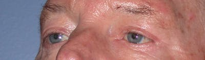 Eyelid Lift Gallery - Patient 4756962 - Image 6